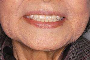 義歯セット時