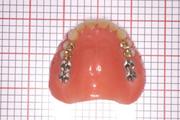 自費総義歯