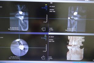 CT画像診断の画面